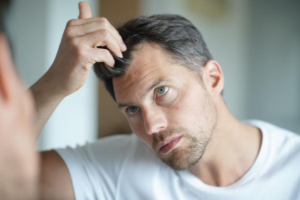 Przeszczep włosów – czy zawsze jest skutecznym rozwiązaniem? - Zdjęcie główne