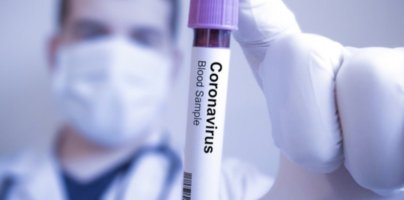 Koronawirus dotarł do Polski! Potwierdzono pierwszy przypadek - Zdjęcie główne