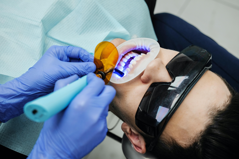 Podstawowe wyposażenie gabinetu dentystycznego. Wybierz nowoczesne lampy polimeryzacyjne - Zdjęcie główne