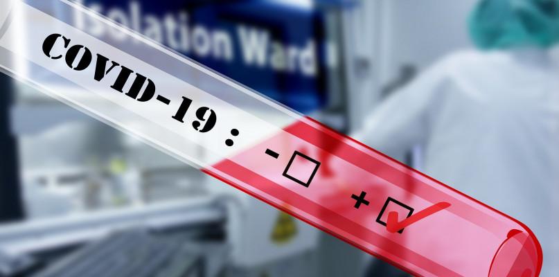 Ratownik medyczny z Płocka o pandemii koronawirusa: szykujemy się na wojnę  - Zdjęcie główne