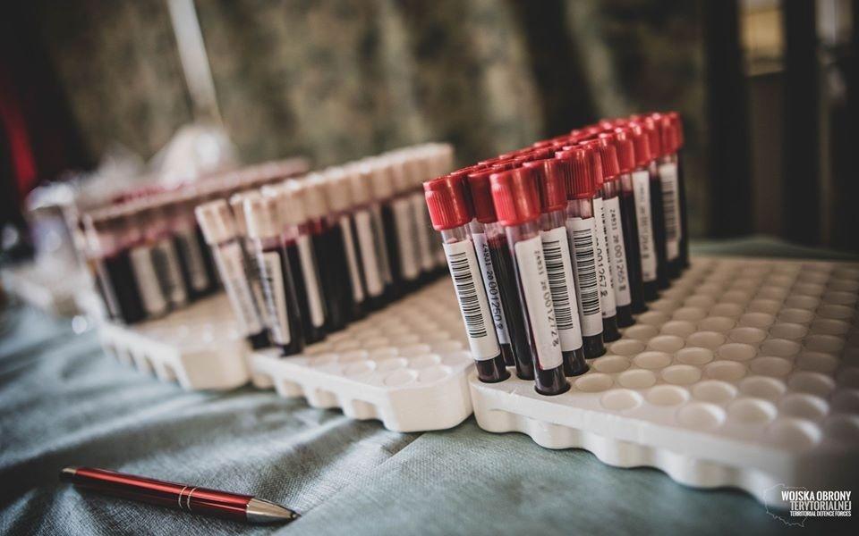 Mała liczba testów na obecność koronawirusa w Polsce dziwi nawet lekarzy. Głos zabrał dyrektor Szpitala Narodowego - Zdjęcie główne